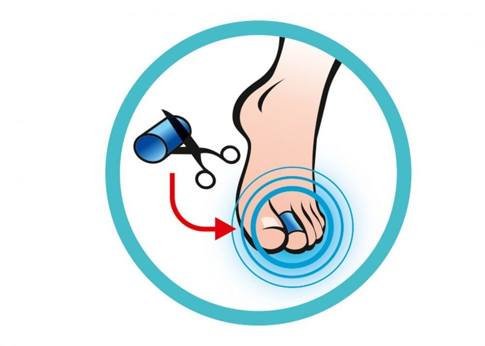 Sidas Gel Toe Wrap (X4) Guide